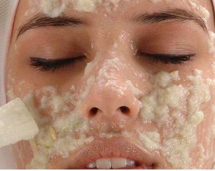 anti acne peeling